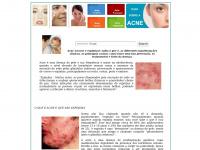 Acneeespinhas.org - ACNE E ESPINHAS - Tudo sobre acne, cravos e espinhas